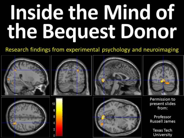 Understanding PG Donor from Brain Images